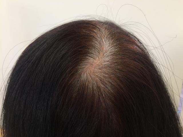 女性の薄毛の画像